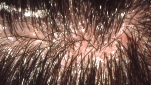 Лусочки   волосся + запалення