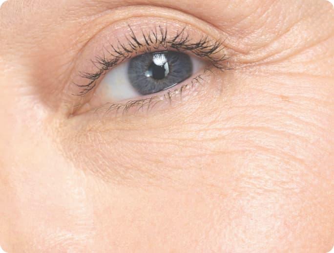 Under eyes wrinkles