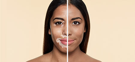 v_before_after-vitiligo.jpg