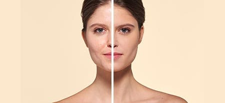 v_before_after-oily_skin.jpg