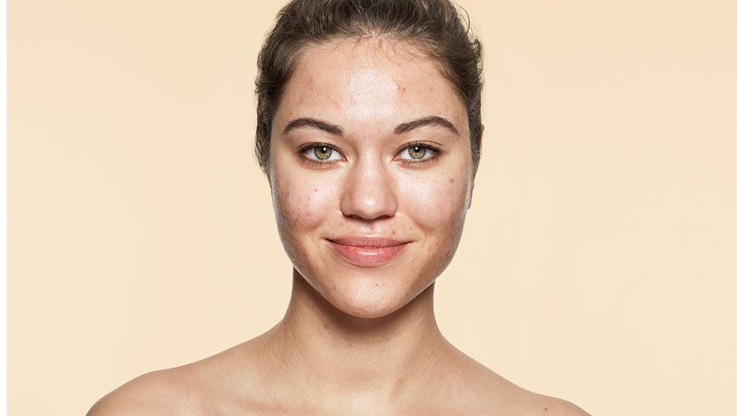 v_before-acne.jpg